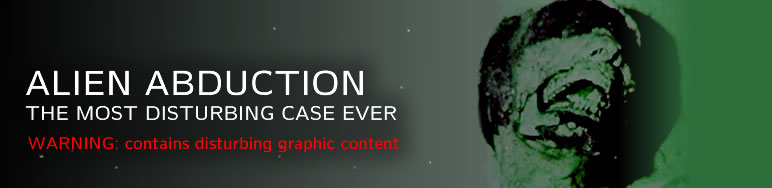 http://www.alienvideo.net/0805/alien-abduction-mutilation.php
